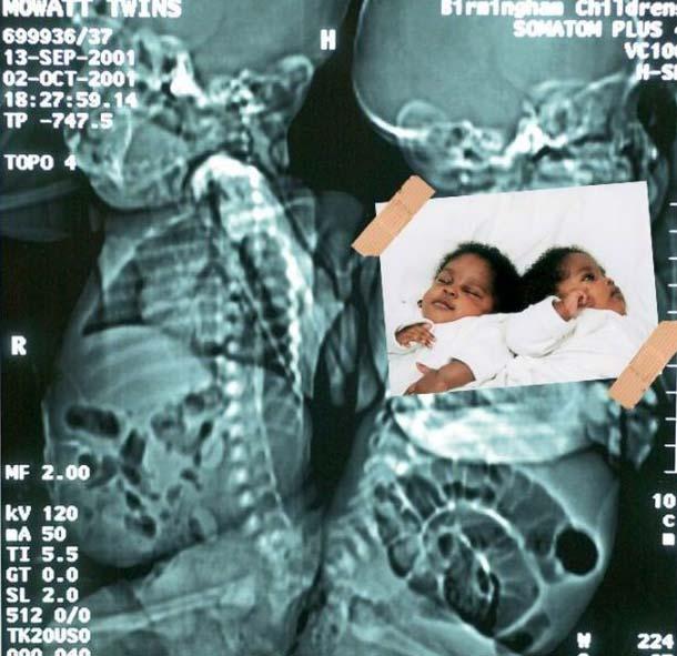 Экспонат 5. Сиамские близнецы