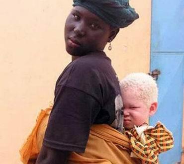 Альбинизм - дар или проклятие