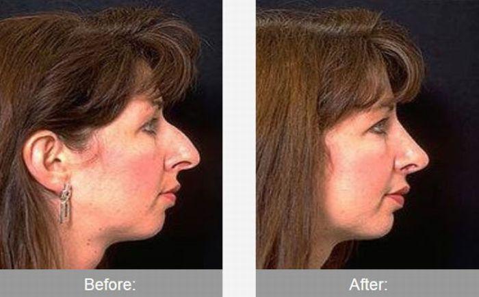 До и после трансформации (42 фотографии)