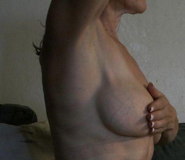 Раритетные грудные силиконовые имплантанты. Носились 20 лет. Пока в хозяйке. Стартовая цена - 25 000 долларов.