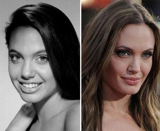 Что форма носа Джоли