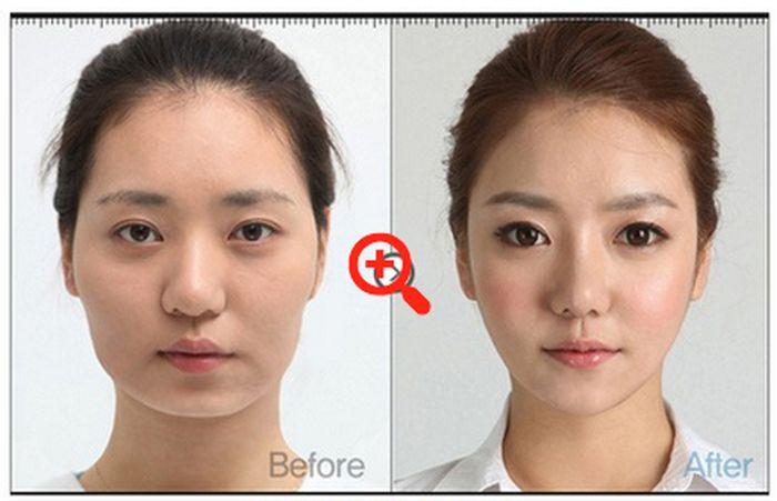 Пластическая хирургия в стиле до и после