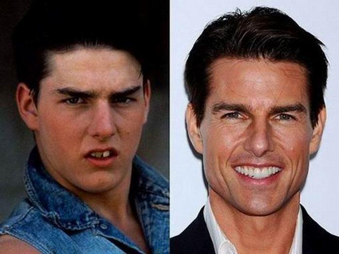 Звездные улыбки: до и после (10 фотографий)